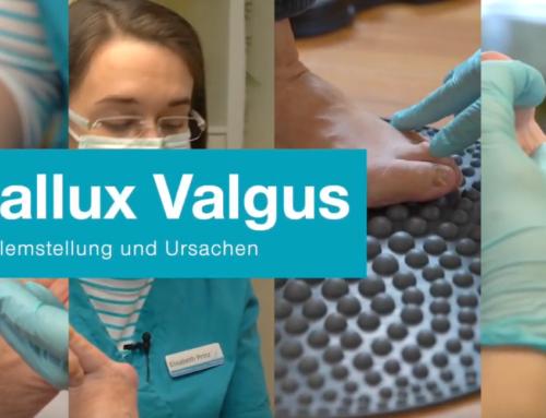 Video zu Hallux Valgus